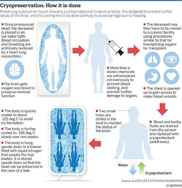 Cryonicprocedures22042015