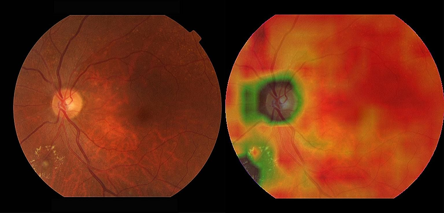 (Far left) A retinal image with diabetic retinopathy (DR) next to a heat map generated by the AI system which highlights where the DR lesions are.