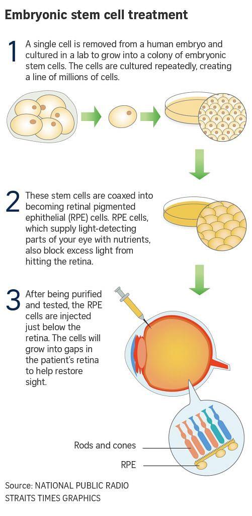 Stem cell eye treatment safe, restores some vision: Study