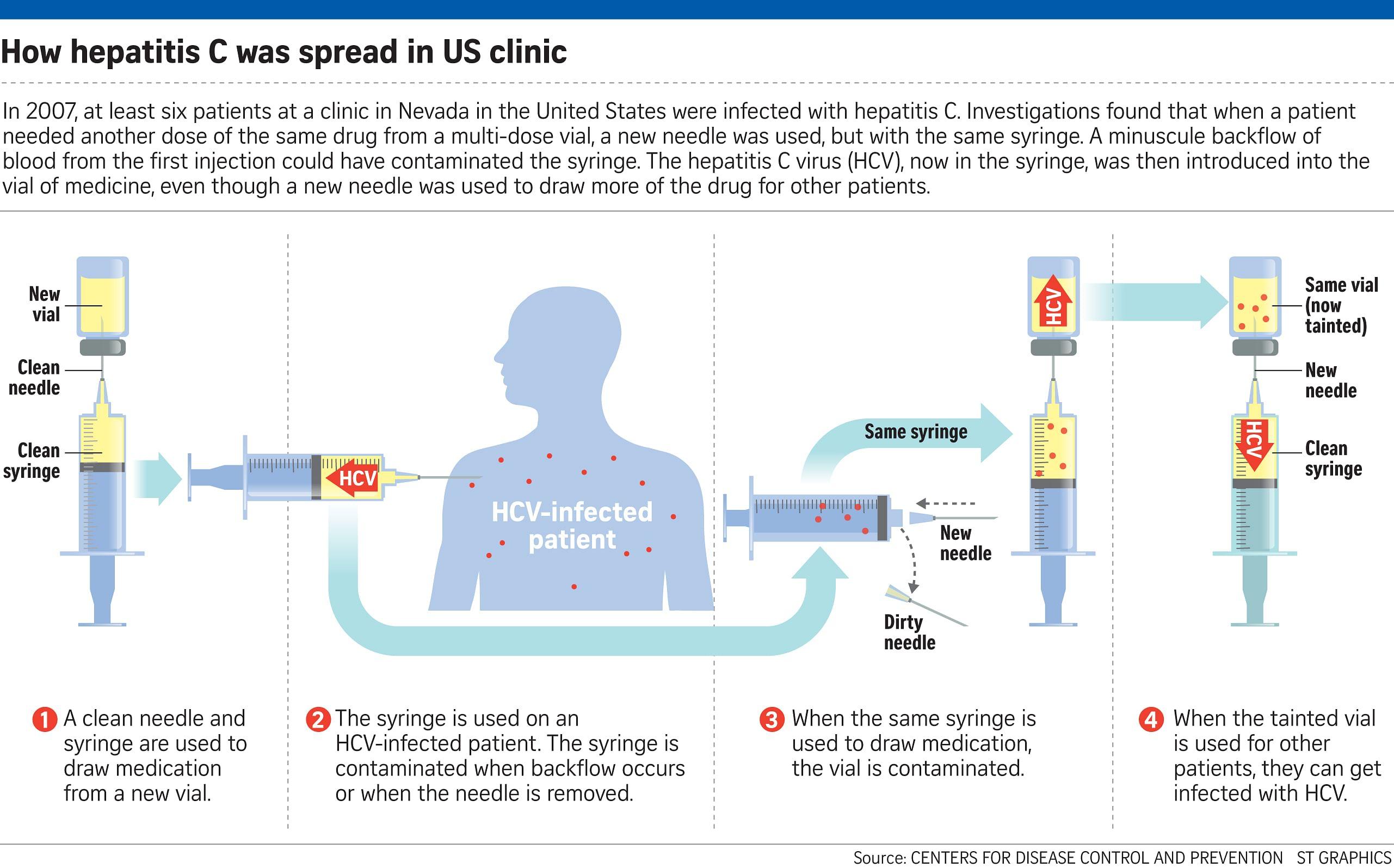 How hepatitis C was spread in US clinic